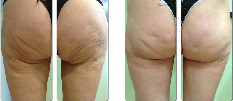 Med Spa Body Contouring Skin Tightening Renew Esthetics