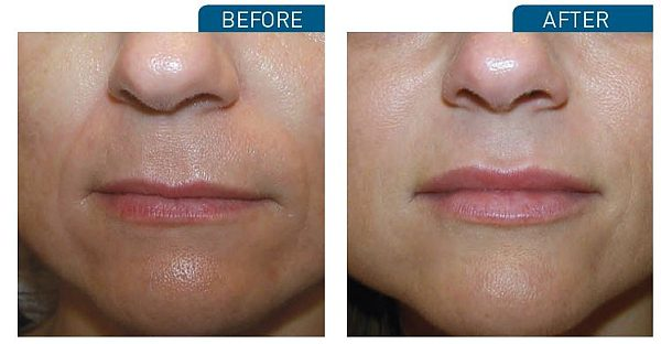 April Special on Lip Fillers