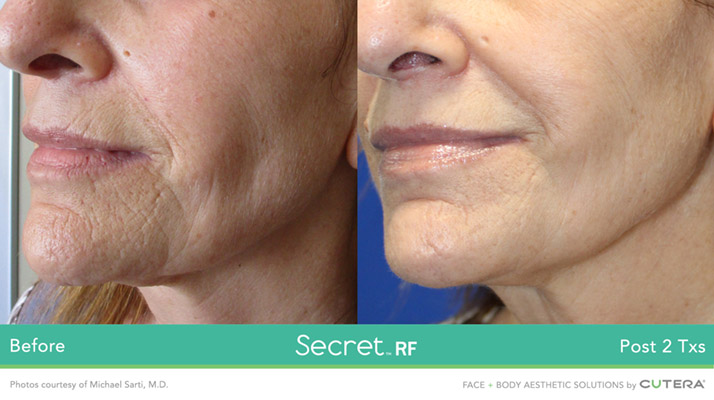 The Secret Rf Microneedling Renew Estheticsrenew Esthetics