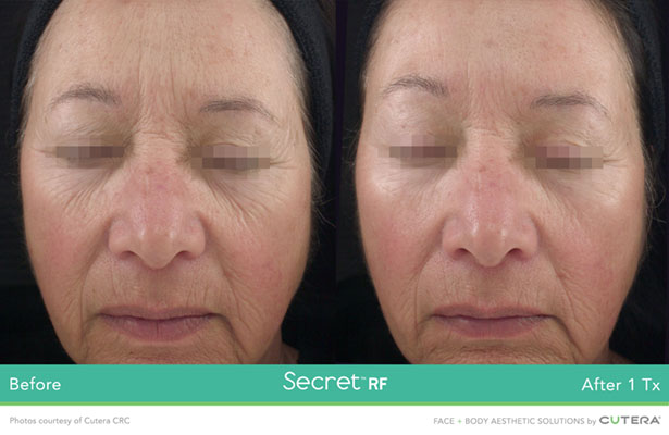 The Secret RF Microneedling – Renew Esthetics