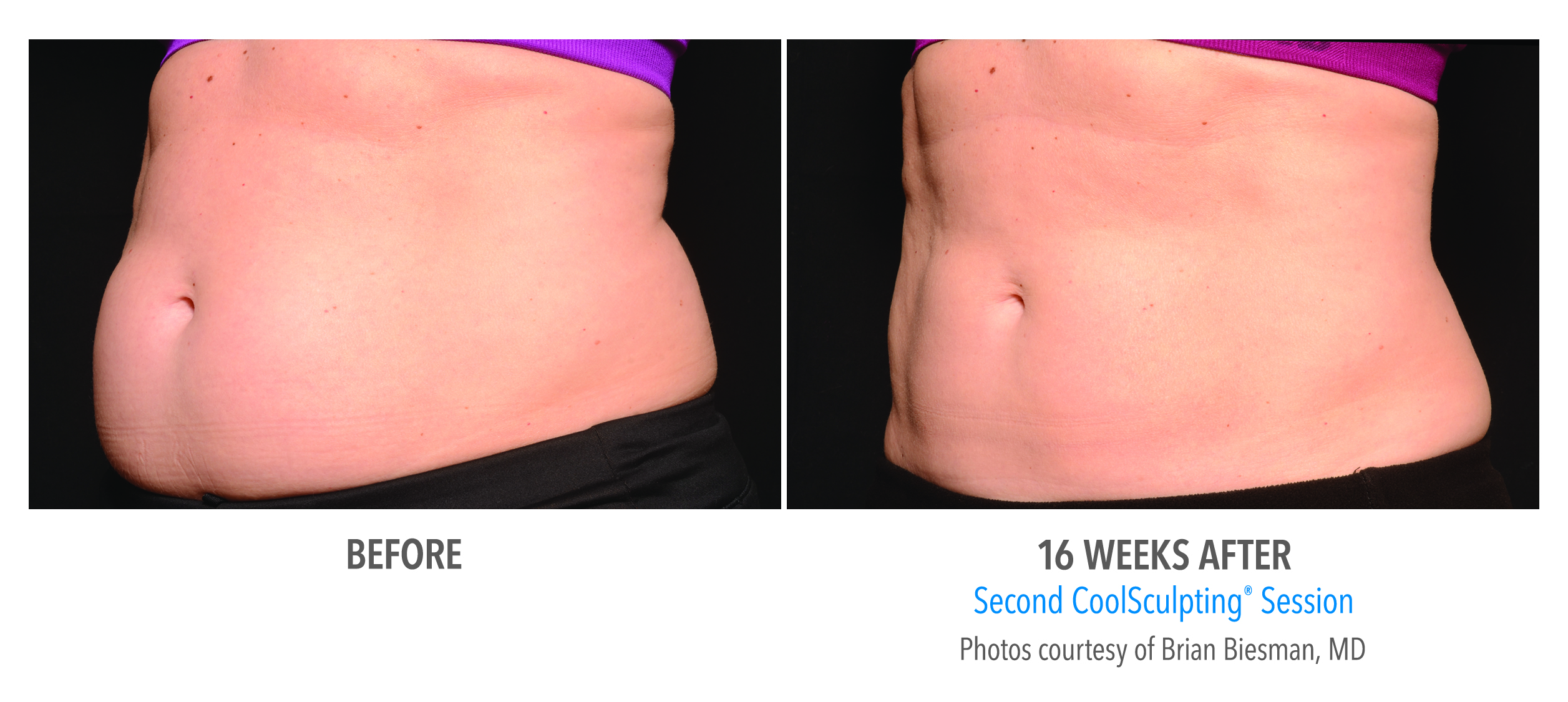 fat_reducing_coolsculpting_redmond_oregon