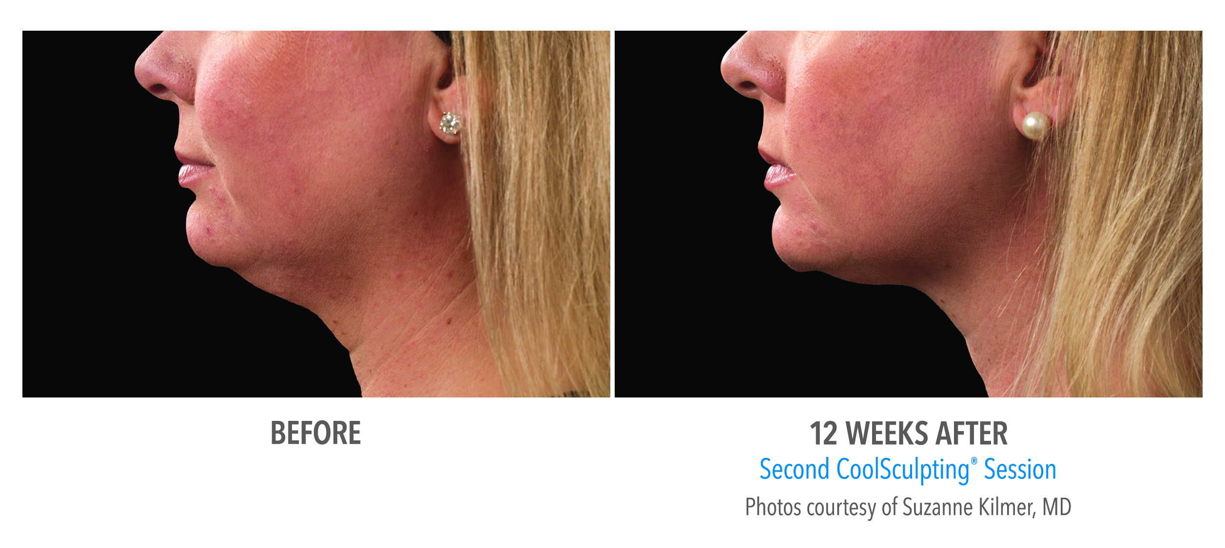 female_coolsculpting_chin_neck_profile