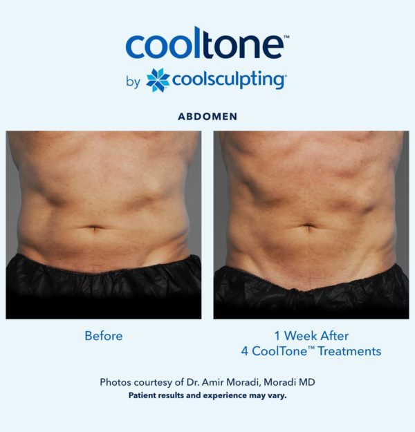 CoolTone by CoolSculpting in Redmond, Oregon