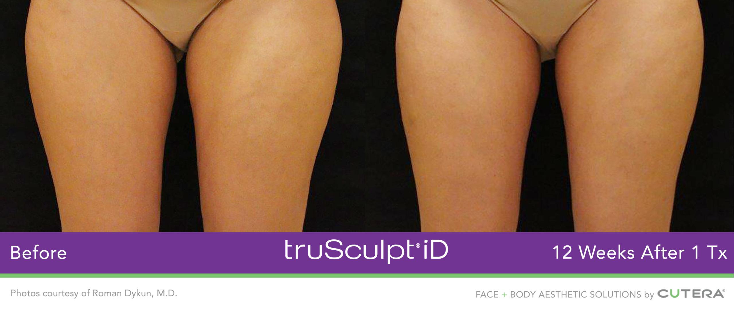 TruSculpt iD