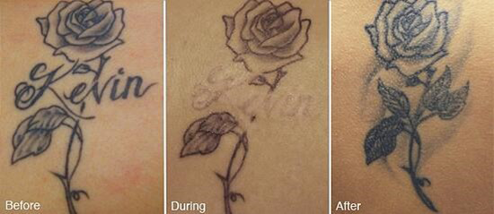 selective_tattoo_removal_redmond_or